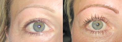 Vorher - Nachher Augenbraue