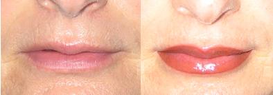 Vorher - Nachher Lippen